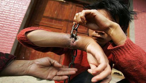 Hombre vive con cadenas dentro de sus muñecas