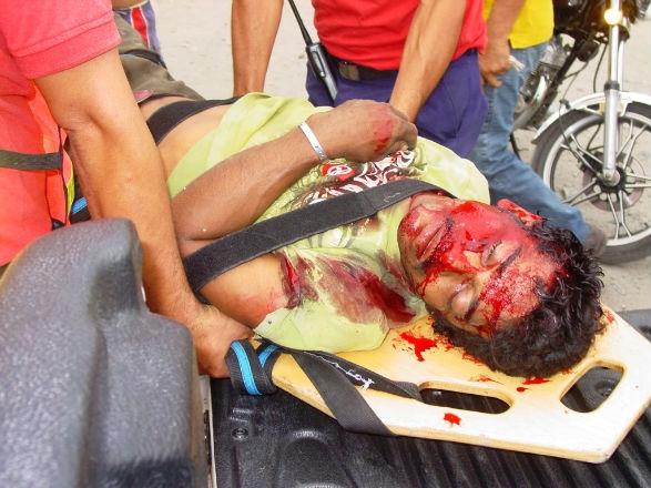 Hombre en moto chocó contra vehículo y su situación es crítica