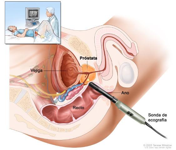 Chequeos gratis contra  el cáncer de próstata