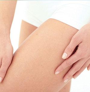 Remedios naturales para minimizar las estrías