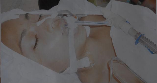 Accidentada perdió parte del cráneo y lucha por vivir