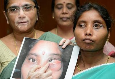 Médicos extraen dos dientes del ojo de una mujer