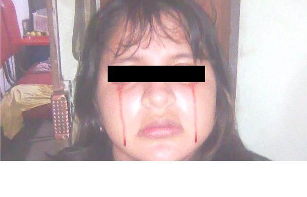 Una adolescente llora sangre