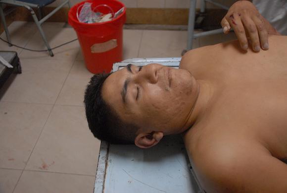Motoclista pierde la vida al ser embestido por un taxi