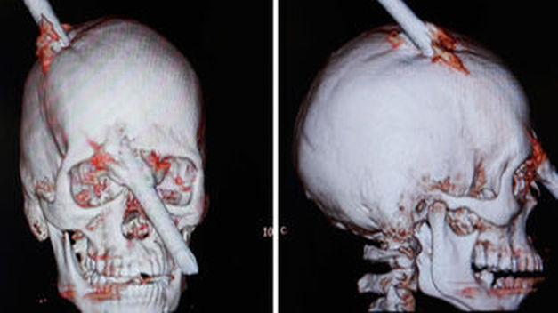 Una barra de acero atraviesa el cráneo de un obrero