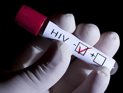 Fármaco contra la leucemia ayudaría a detectar el VIH