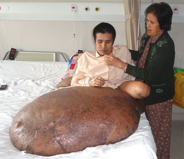 Extirpan con éxito un tumor de 90 kilos en Vietnam