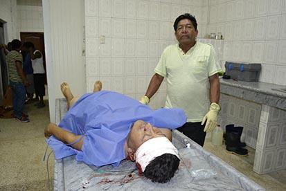Un motociclista muere en la vía Jipijapa-Puerto López.