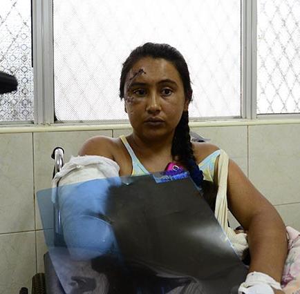 Mujer se recupera de un accidente de tránsito
