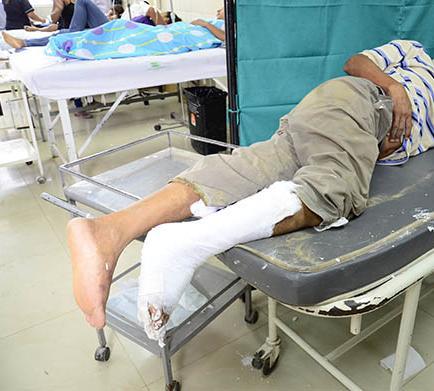 Pala de una gallineta le causa fractura en el pie
