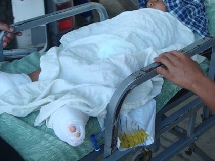 Niño recibe descarga eléctrica  y es hospitalizado