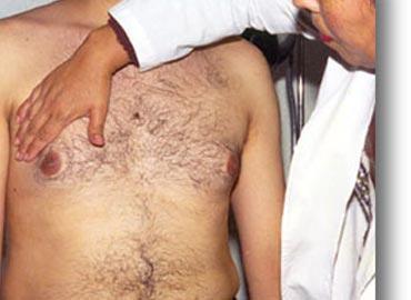 Los hombres también recibirán atención por cáncer de mama en México