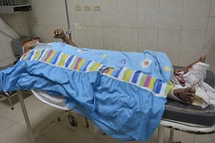 Hombre presenta fracturas en sus piernas