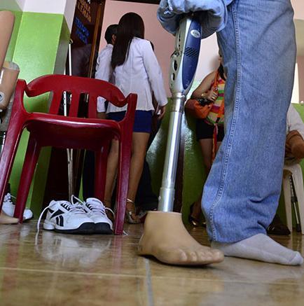 15 prótesis mejoran estilo de vida a discapacitados