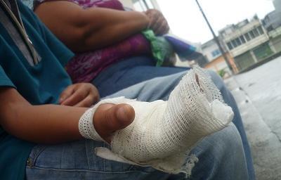 A menor de 13 años le explotó una camareta en su mano en Santo Domingo