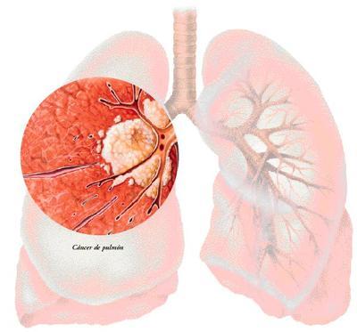 Una mutación genética aumenta el riesgo de cáncer de pulmón