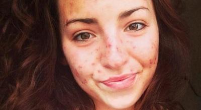 Joven sufre extraña enfermedad que la hace pellizcarse sin control