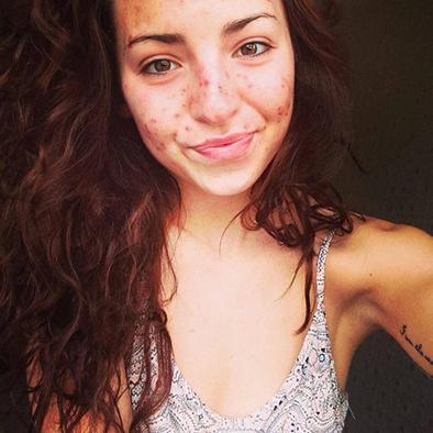 Joven de 20 años sufre extraño síndrome que la motiva a dañar su piel