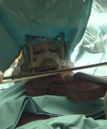 La operan del cerebro mientras entona el violín