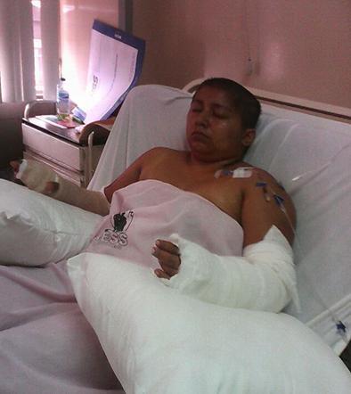 Macheteada se recupera en el hospital