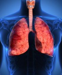 Presentan inmunoterapia más eficaz que 'quimio' contra el cáncer de pulmón