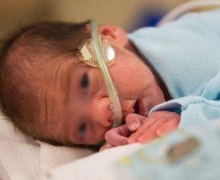 Una mujer en coma da a luz