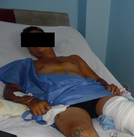 Accidente de tránsito dejó una persona herida en Santo Domingo