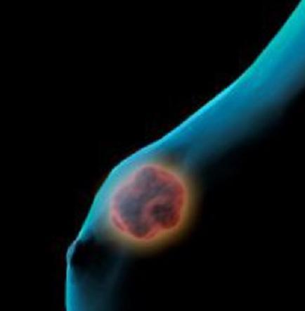Un test genómico al diagnosticar cáncer de mama predice cómo irá tratamiento