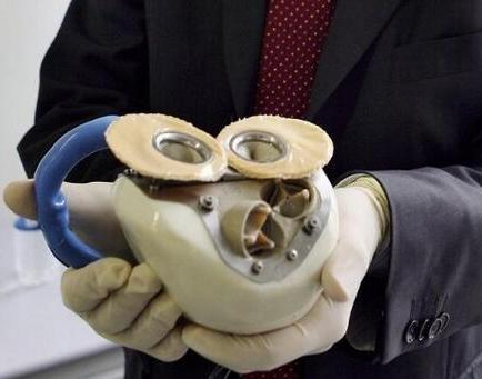 Muere el cuarto paciente a quien se le implantó un corazón artificial