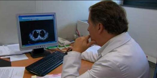 Científicos reducen el cáncer de pulmón más agresivo en modelos preclínicos