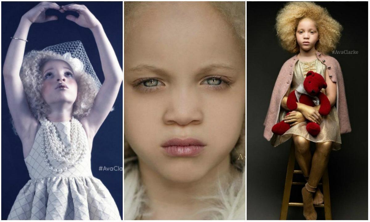 Ava, la niña albina con raíces afroamericanas que revoluciona la moda