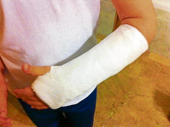 Niña de siete años se fractura un brazo