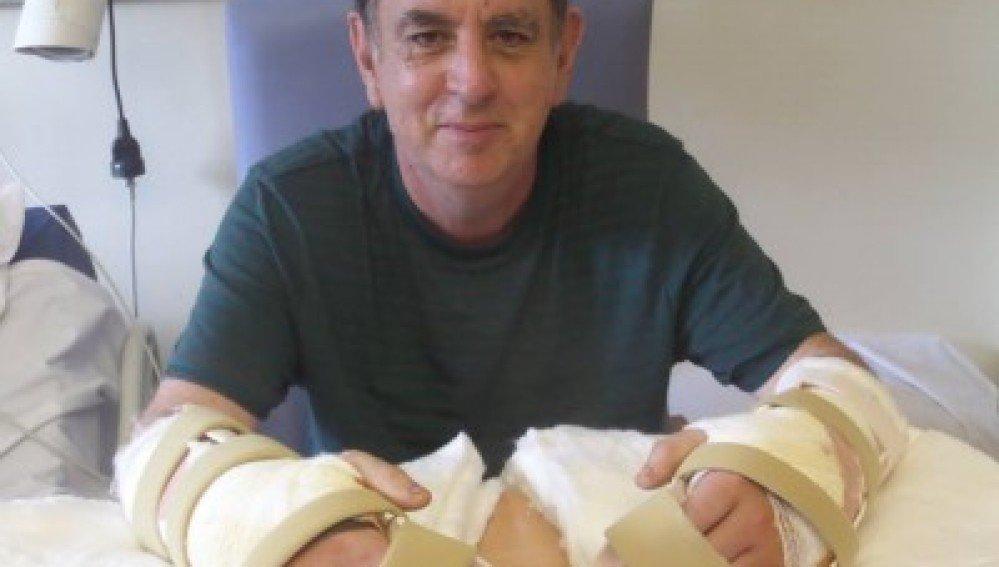 Médicos hacen el primer trasplante de manos en Reino Unido