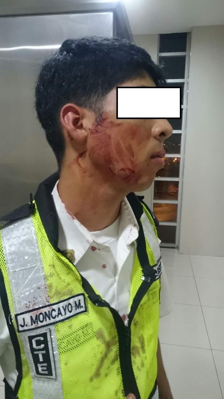 Le muerden la cara a un vigilante