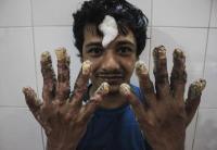 El hombre árbol de Bangladesh tiene nuevas manos