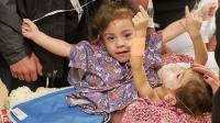 Siamesas latinas fueron separadas con éxito tras cirugía de 18 horas