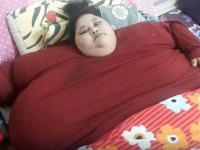Una egipcia de 500 kilogramos será operada en la India para salvar su vida
