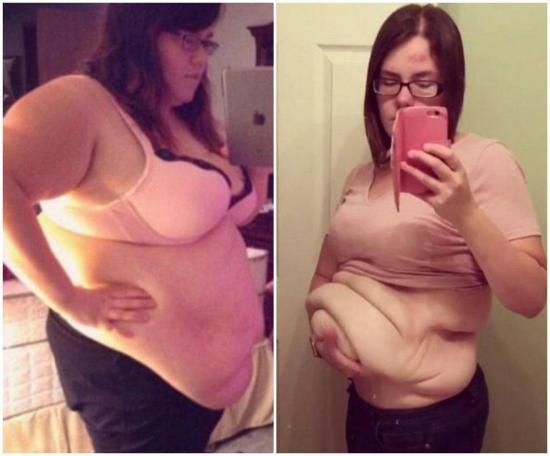 Amanda y el otro lado de la pérdida extrema de peso