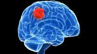 Descubren 13 alteraciones genéticas que aumentan el riesgo de cáncer cerebral
