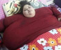 Mujer niega que su hermana haya perdido 240 kilos y denuncia fraude