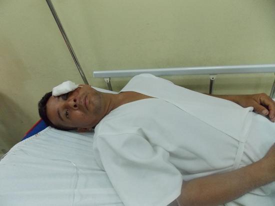 Sufre lesión tras caer de escalera