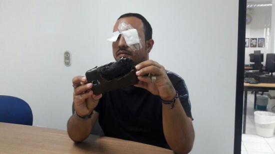 Afectado por explosión de celular recibe llamada de representantes de Samsung
