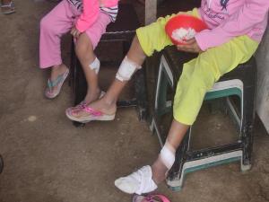 Reportan 63 casos de leishmaniasis en la zona urbana y rural