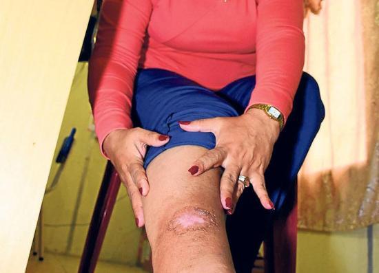 Hay 194 casos más de Leishmaniasis este año