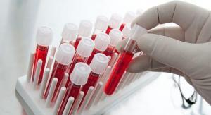 Crean un test de sangre capaz de detectar de forma temprana 8 tipos de cáncer