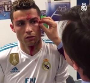 ¡FUERTE! Mira cómo fue la herida que Cristiano Ronaldo sufrió ante el Deportivo
