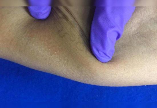 Inventan un tatuaje electrónico que mide el ritmo cardíaco y la temperatura