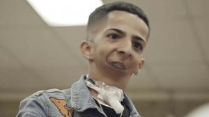 Joven sin mandíbula que escribe rap es nominado en premios para inspiradores