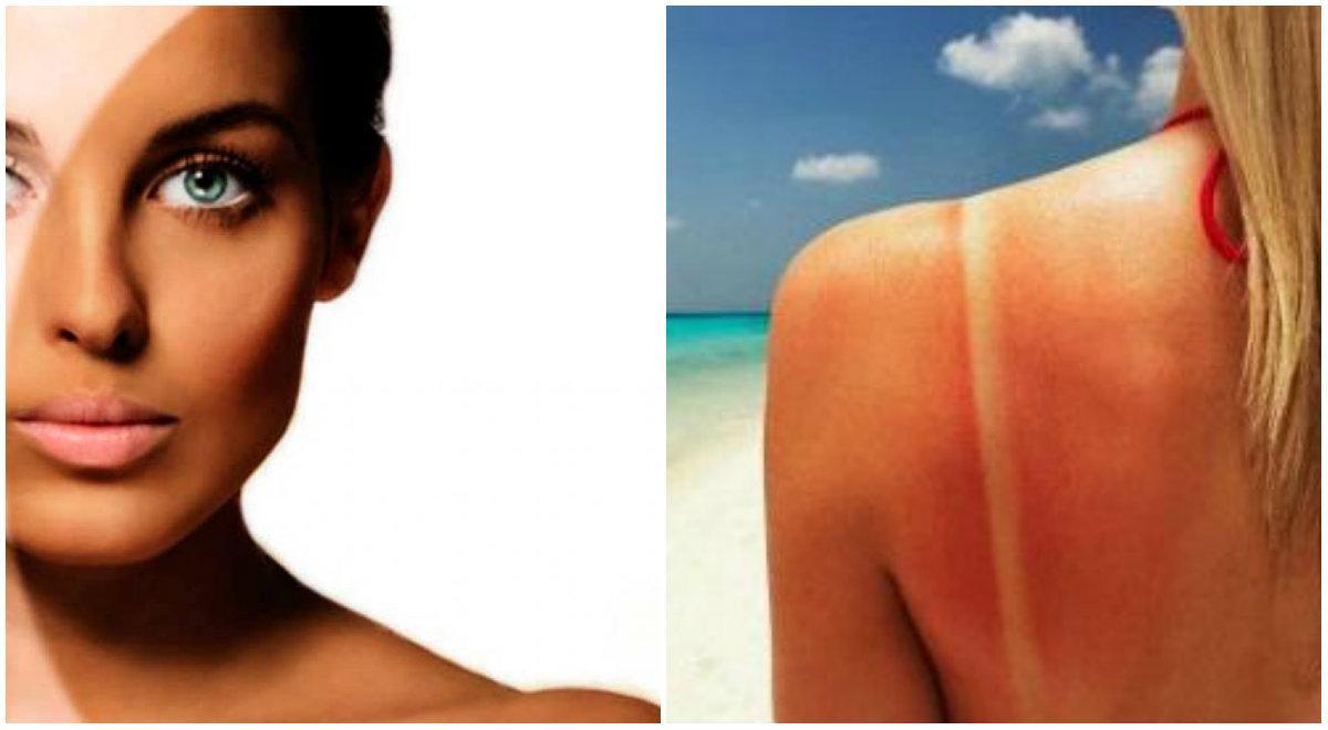 Variaciones genéticas determinan si la piel se quema o broncea, según estudio