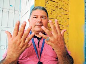 """""""Don 24' dedos vive sin complejos"""